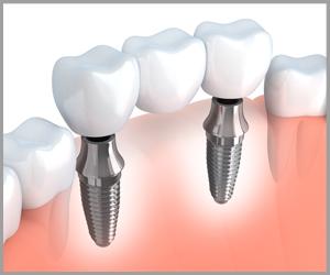 Winegar Dentistry - Crowns