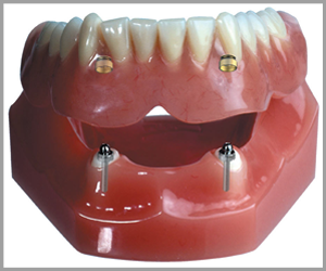 Winegar Dentistry - Implant Supported Denture