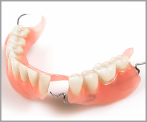 Winegar Dentistry -Partial Dentures